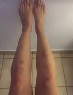 Πασίγνωστη Ελληνίδα ηθοποιός εμφανίστηκε με αυτά τα σημάδια στα πόδια...