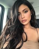 Η Kylie Jenner αφαίρεσε τα εμφυτεύματα από τα χείλη της και η αλλαγή στην εμφάνισή της είναι μεγάλη!